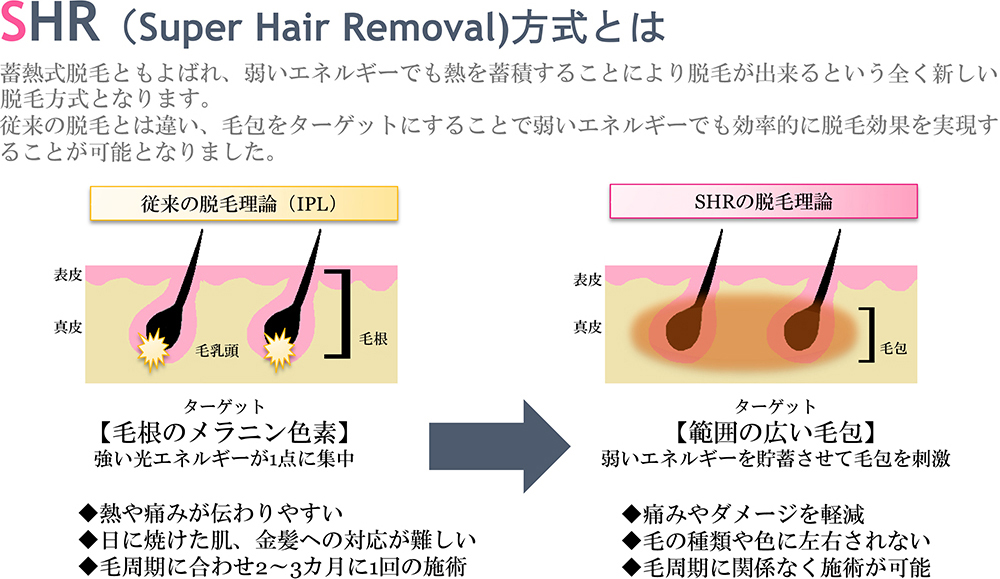 SHR(Super Hair Removal)方式とは